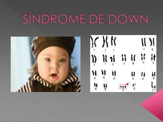 Descubrimiento: John Langdon Haydon Down y Jérôme Lejeune. Alteración genética de los cromosomas.