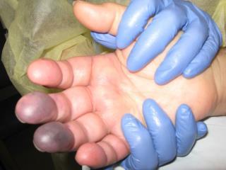 Disseminated Intravascular  Coaggulation  and  Purpura Fulminans
