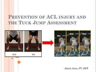 Prevention of ACL injury and the Tuck Jump Assessment