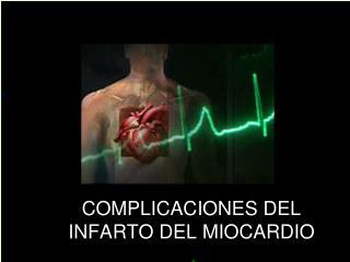 COMPLICACIONES DEL INFARTO DEL MIOCARDIO