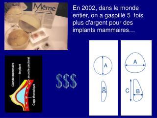 En 2002, dans le monde entier, on a gaspillé 5 fois plus d'argent pour des implants mammaires…