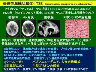 伝達性海綿状脳症 (  TSE:  Transmissible spongiform encephalopathy )