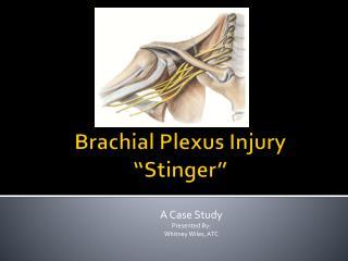 "Brachial Plexus Injury ""Stinger"""