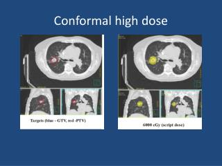 Conformal high dose