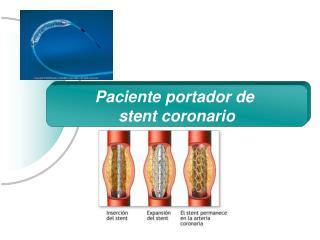 Paciente portador de  stent coronario