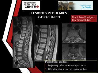 LESIONES MEDULARES CASO CLÍNICO