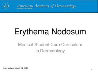 Erythema Nodosum