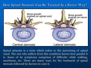Treatment of Spinal Stenosis
