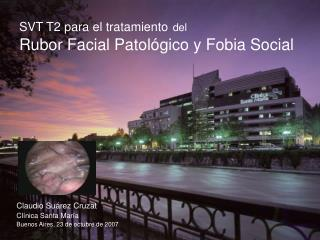 SVT T2 para el tratamiento del Rubor Facial Patológico y Fobia Social