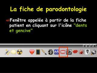 La fiche de parodontologie