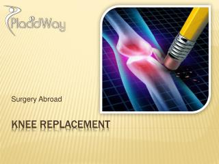 Knee Replacement Surgery Helps You Enjoy Life Again