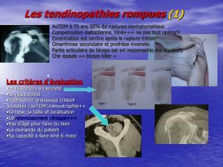 Les tendinopathies rompues  (1)