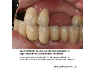 Upper right side edentulous site with missing teeth upper second bicuspid and upper first molar