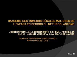 IMAGERIE DES TUMEURS R É NALES MALIGNES DE L'ENFANT EN DEHORS DU NEPHROBLASTOME