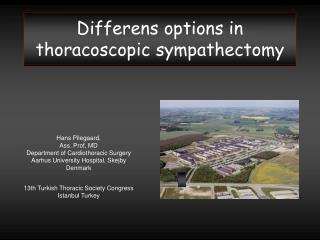 Differens options in  thoracoscopic sympathectomy