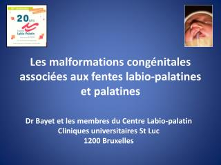 Les malformations congénitales associées aux fentes  labio-palatines  et palatines