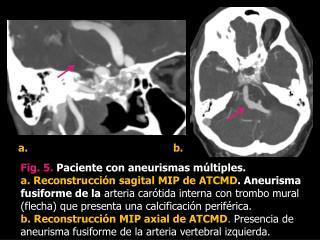 Fig.  5 .  Paciente con aneurismas múltiples.