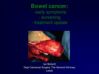 Bowel cancer: - early symptoms  - screening  - treatment update