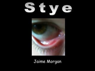Jaime Morgan