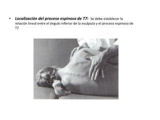 OSTEOLOGÍA SUPERFICIAL DE LA COLUMNA LUMBAR