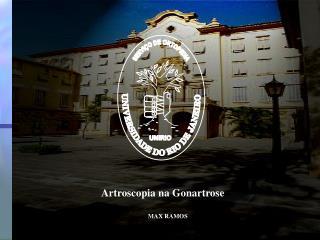 Artroscopia na Gonartrose