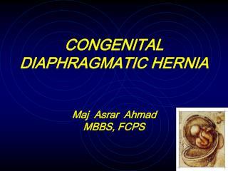 CONGENITAL DIAPHRAGMATIC HERNIA Maj  Asrar  Ahmad MBBS, FCPS