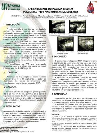 APLICABILIDADE DO PLASMA RICO EM  PLAQUETAS PRP NAS ROTURAS MUSCULARES
