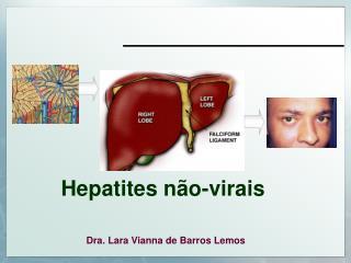 Hepatites n�o-virais
