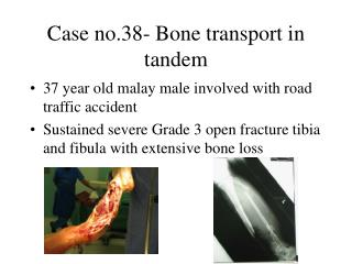 Case no.38- Bone transport in tandem