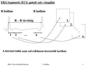 EKG kapuzott (ECG gated) szív vizsgálat