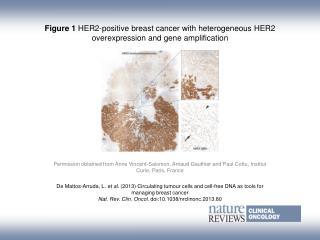 De Mattos-Arruda, L.  et al. ( 2013)  Circulating tumour cells and cell-free DNA as tools for