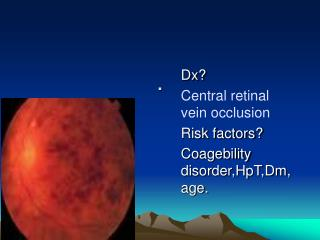 Dx? Central retinal vein occlusion Risk factors? Coagebility disorder,HpT,Dm,age.