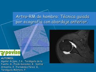 Artro-RM de hombro: Técnica guiada por ecografía con abordaje anterior.