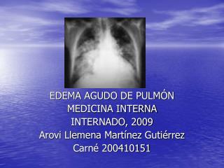 EDEMA AGUDO DE PULMÓN MEDICINA INTERNA INTERNADO, 2009 Arovi Llemena Martínez Gutiérrez