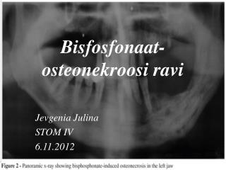 Bisfosfonaat-osteonekroosi ravi