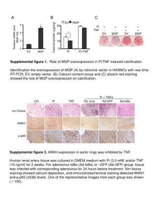Relative mRNA level MGP/18S