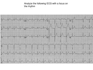 Analyze the following ECG with a focus on the rhythm