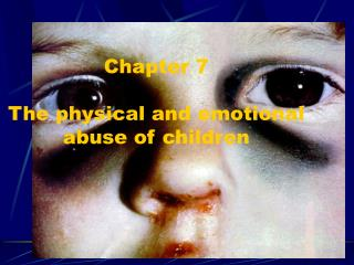 Chapter 7 The physical and emotional abuse of children