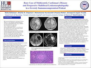 Rare Case of  Multicentric  Castleman's Disease  and Progressive Multifocal  Leukoencephalopathy