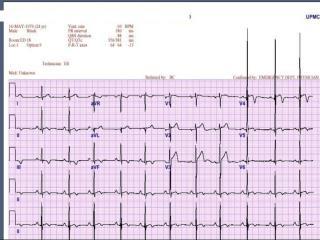 LVH & Heart murmur