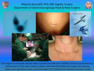 Miljenko Bura MD, PhD, KBC Zagreb, Croatia Department of Otorinolaryngology Head & Neck Surgery