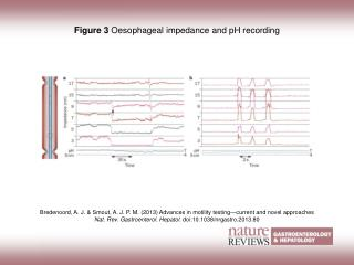 Figure 3  Oesophageal impedance and pH recording