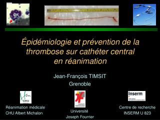 pid miologie et pr vention de la thrombose sur cath ter central  en r animation