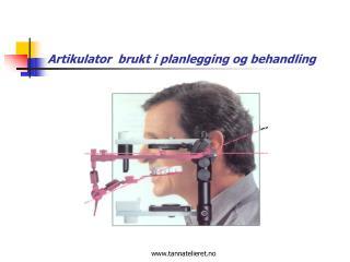Artikulator  brukt i planlegging og behandling