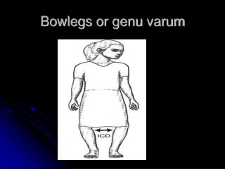Bowlegs or  genu varum