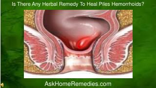 Is There Any Herbal Remedy To Heal Piles Hemorrhoids?