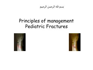 Principles of management Pediatric Fractures