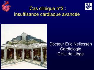 Cas clinique n°2 :   insuffisance cardiaque avancée