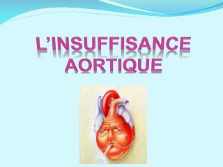 L'INSUFFISANCE AORTIQUE