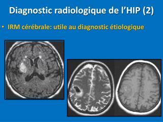 Diagnostic radiologique de l�HIP (2)